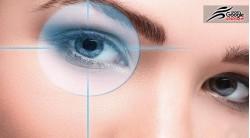 آب مروارید و درمان بیماری های چشمی توسط لیزر